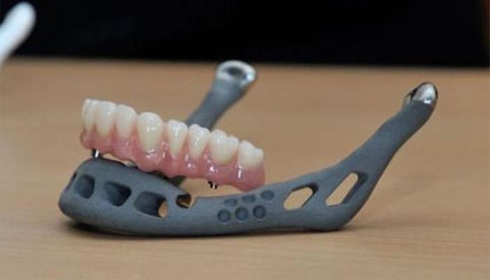 3d implant