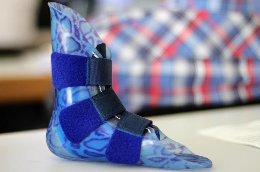 3D принтирането при изработка на протези